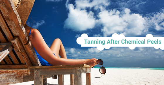 Tanning After Chemical Peels