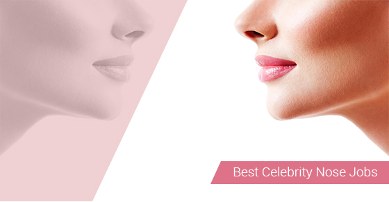 Best Celebrity Nose Jobs