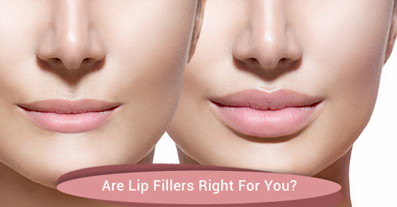 Are Lip Fillers Right For You?