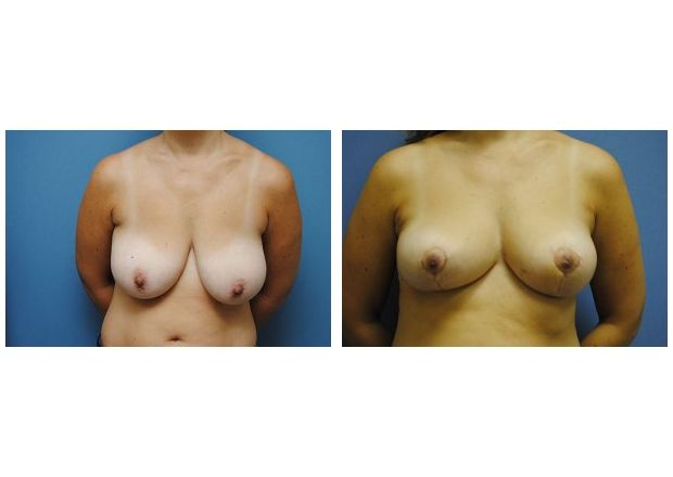 Patient 6 - Breast Reduction Surgery
