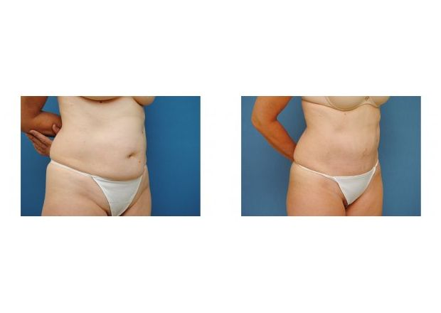 Patient 3 - Tummy Tuck Surgery