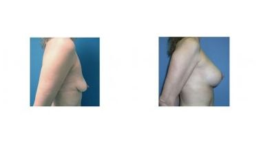 Patient 3 - Breast Lift