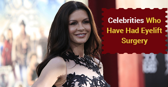 Celebrities Who Have Had Eyelift Surgery