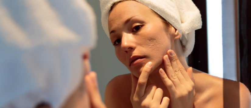 Woman with acne scars looking at the mirror