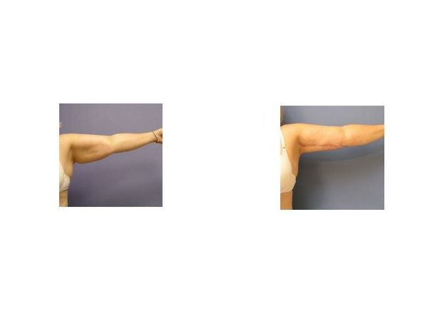 Patient 2 - Arm Lift (Brachioplasty)