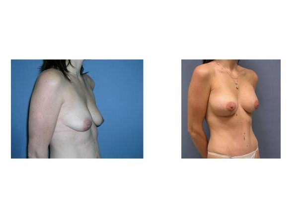 Patient 4 - Breast Augmentation