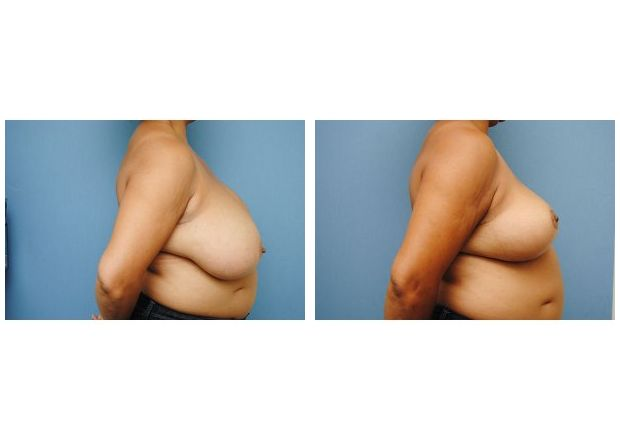 Patient 4 - Breast Reduction Surgery
