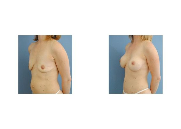 Patient 5 - Breast Augmentation Surgery