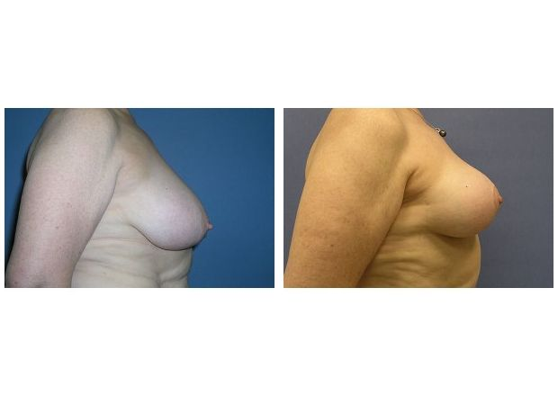Patient 3 - Breast Reduction